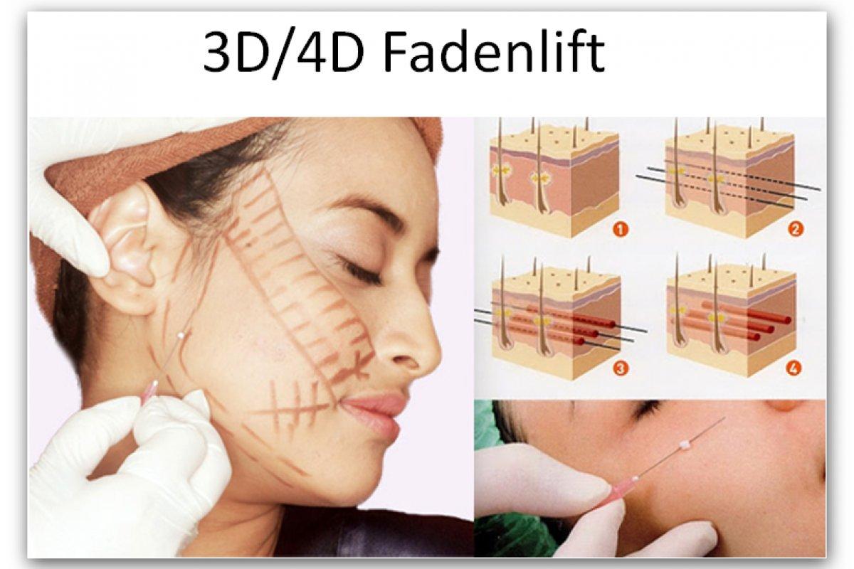 3D Mesofaden Lift